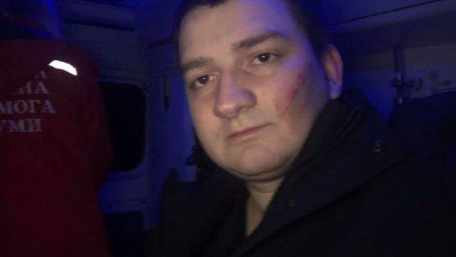 Депутат від «Слуги народу» заявив про напад на нього невідомих у Сумах