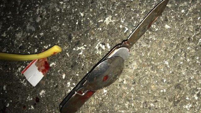 У Києві від ножового поранення помер учасник бойових дій