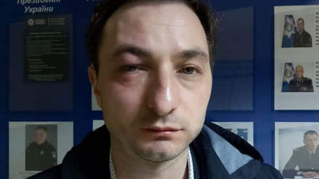 У Києві напали на головного лікаря Інституту раку Андрія Безносенка