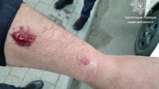 У Львові під час затримання п'яний водій вкусив поліцейського