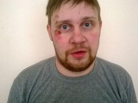 В Украине силовики похитили и избили российского журналиста